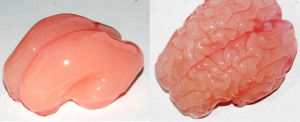 photo from bbc.com. The gel model started out smooth, like the brain of a 22-week-old foetus, and ended up with a pattern of folds similar to that of a brain at 34 weeks
